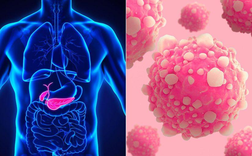Cirugía pionera realizada en España en un paciente 'inoperable' con cáncer de páncreas